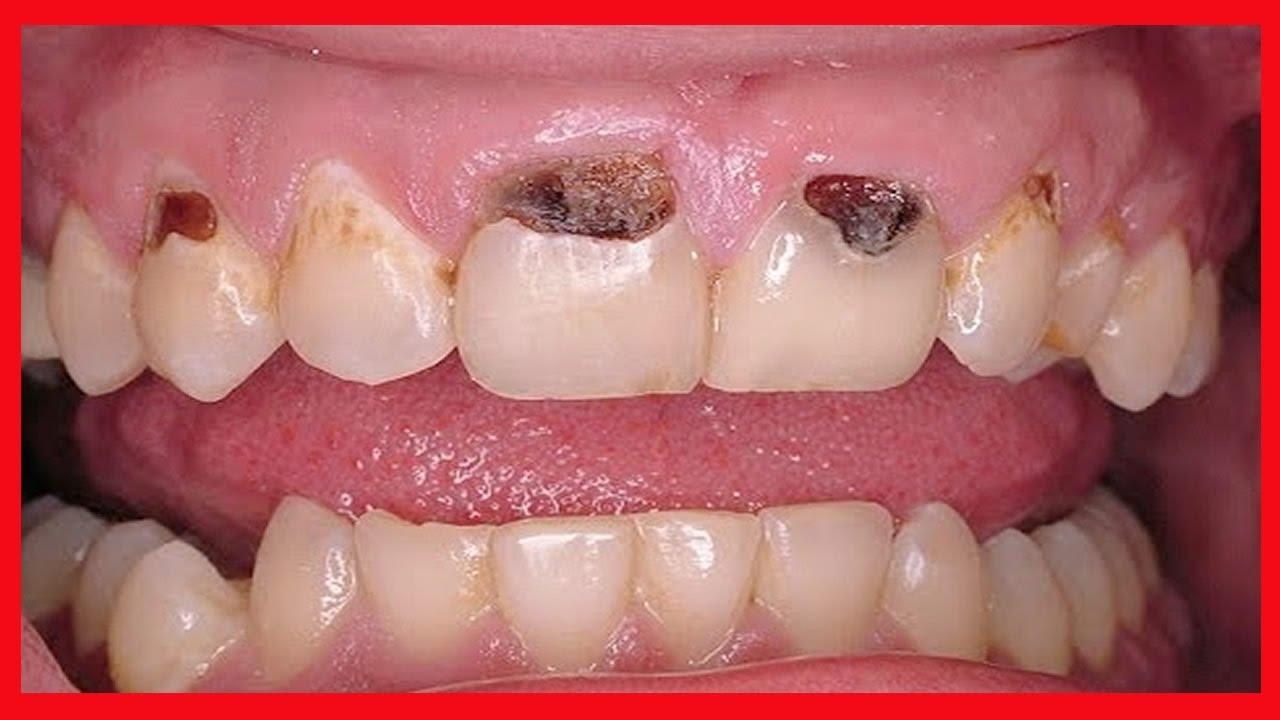 Receita Para Remover Caries E Clarear Os Dentes Em 3 Minutos
