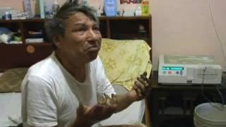 La hormigueo en entumecimiento diabetes y manos de las