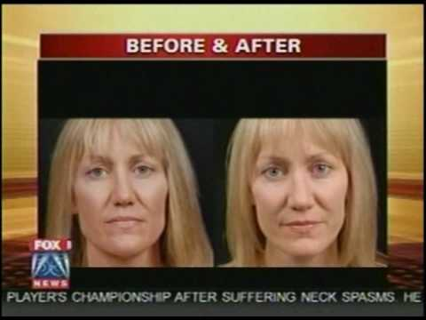 NaturalFill® Natural Wrinkle Filler Featured on Good Day!