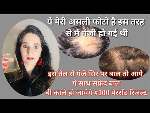 how-i-regrow-my-hair home-remedy-for-baldness&-hair-regrowth  -diy-onion&-ginger-hairoil