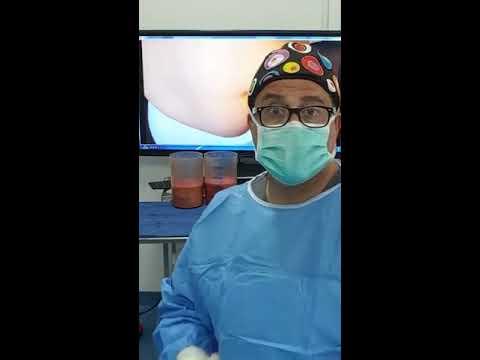 شد و شفط البطن بعد الولادة القيصرية