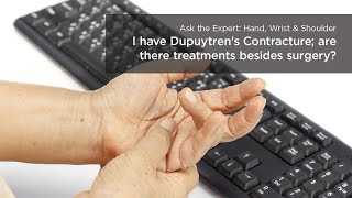 i have dupuytren s contracture are there treatments besides surgery