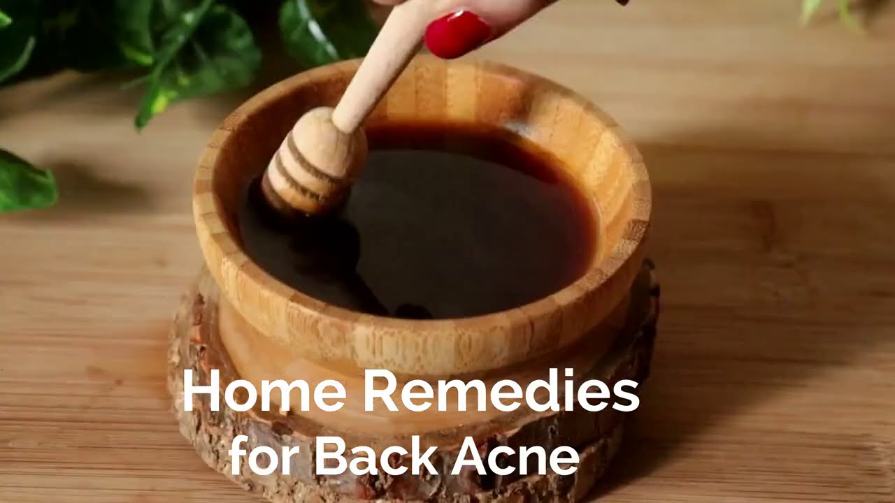 Get Rid of Back Acne & Pimples in 30 Days | Get Smooth Back & Clear Skin - Full Body Polishing Pack