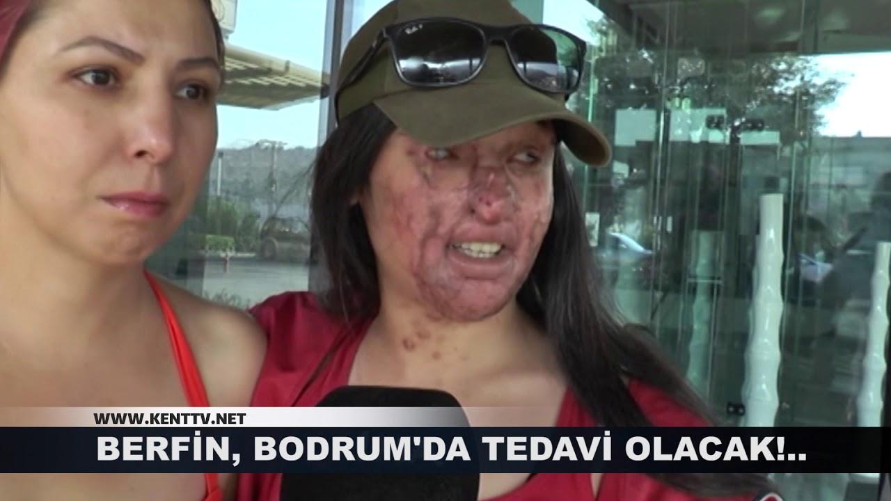BERFİN, BODRUM'DA TEDAVİ OLACAK! #1