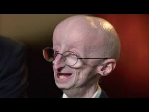 Mother Discovers Gene Mutation Responsible For Son's Progeria