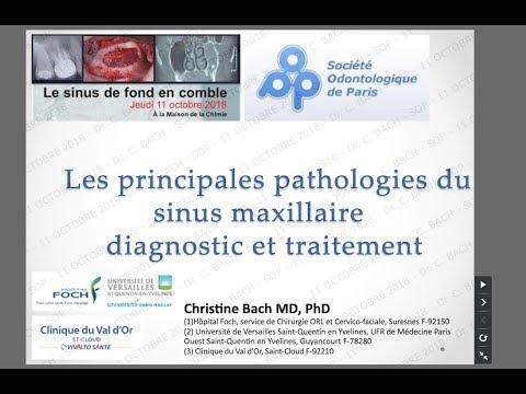 EXTRAIT « Les principales pathologies du sinus maxillaire : diagnostic et traitement »