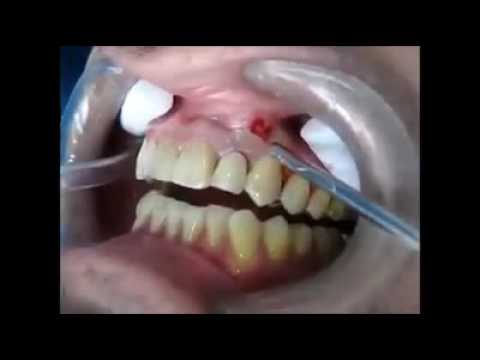 apse dentaire