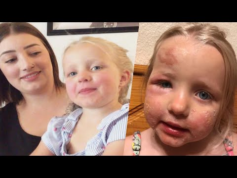 Mother 'Traumatized' After 3-Year-Old Gets 'Margarita Burn' Skin Blisters