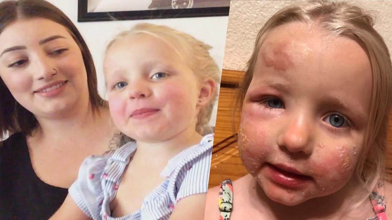 Mother 'Traumatized' After 3-Year-Old Gets 'Margarita Burn