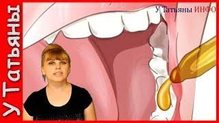 Болит зуб? СУПЕР ОБЕЗБАЛИВАЮЩЕЕ от ЗУБНОЙ БОЛИ!