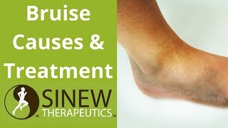 Bruise Causes and Treatment