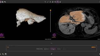 RegionGrowing for CE-MRI (EOB-Primovist) thumbnail