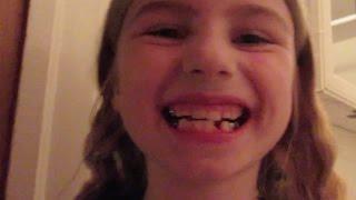 Their Teeth Keep Falling Out