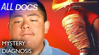 The Boy With the 150 Lb Leg: Klippel Trenaunay Syndrome (KTS) | Medical Documentary | Reel Truth