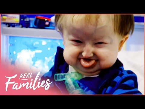 Being Born With Hallermann-Streiff Syndrome | Temple Street Children's Hospital