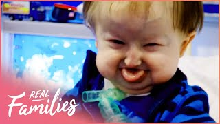 Being Born With Hallermann-Streiff Syndrome | Temple Street Children's Hospital