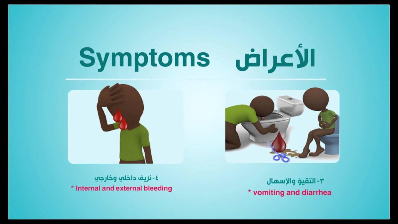 بالفيديو.. وزارة الصحة للعراقيين: لا علاج للحمى النزفية.. وإذا اُصبتم بها ستموتون