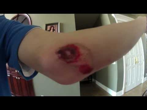 Kid Gets Stitches After Huge Longboard Fall