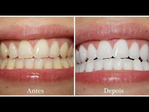 Casca De Laranja Para Clarear Os Dentes