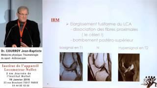 Docteur COURROY Jean-Baptiste - Kyste mucoïde du LCA