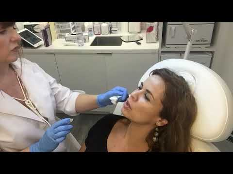 Nasalobial Folds Filler Live Demo at Body+Beauty Lab