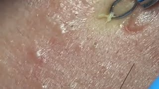 How to clean the blackheads on the face?