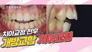 개방교합 치아교정 전후영상_그랑교정치과