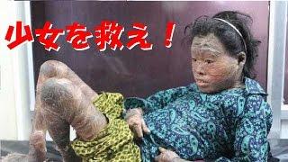 【閲覧注意】医師が魚鱗癬で苦しむ少女にした驚愕の治療とは ハーレークイン症 検索動画 21