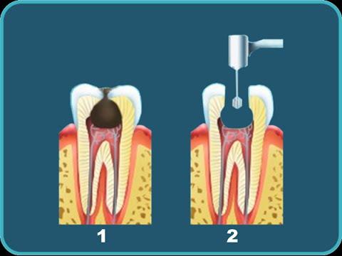 Какие антибиотики можно принимать при зубной боли?