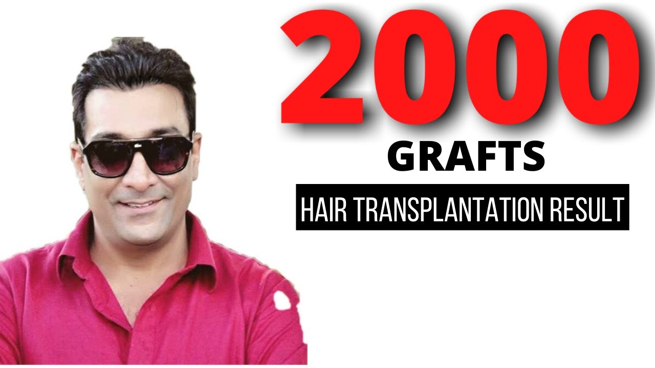 Hair transplantation using 2000 grafts for Grade 3  baldness ( Ludhiana)