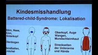 Kinderschutz am Pranger - ZDFzoom Sendung vom 05.02.2014 - ZDF zoom