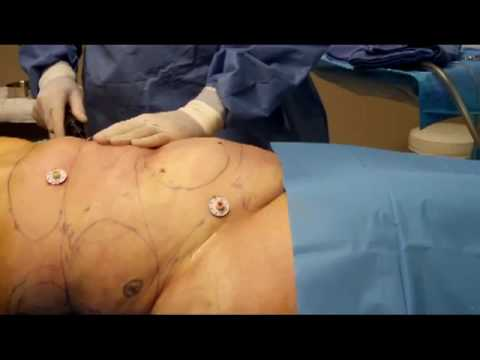Get Rid of Unwanted Fat Quickly with SmartLipo and Vaser Liposuction
