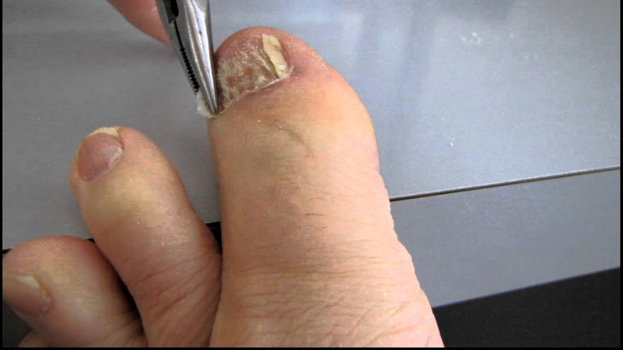 Removal of damaged toenail - YouTube