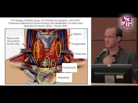 Surgical Treatment for Papillary Thyroid Cancer | Contra Central Neck Dissection