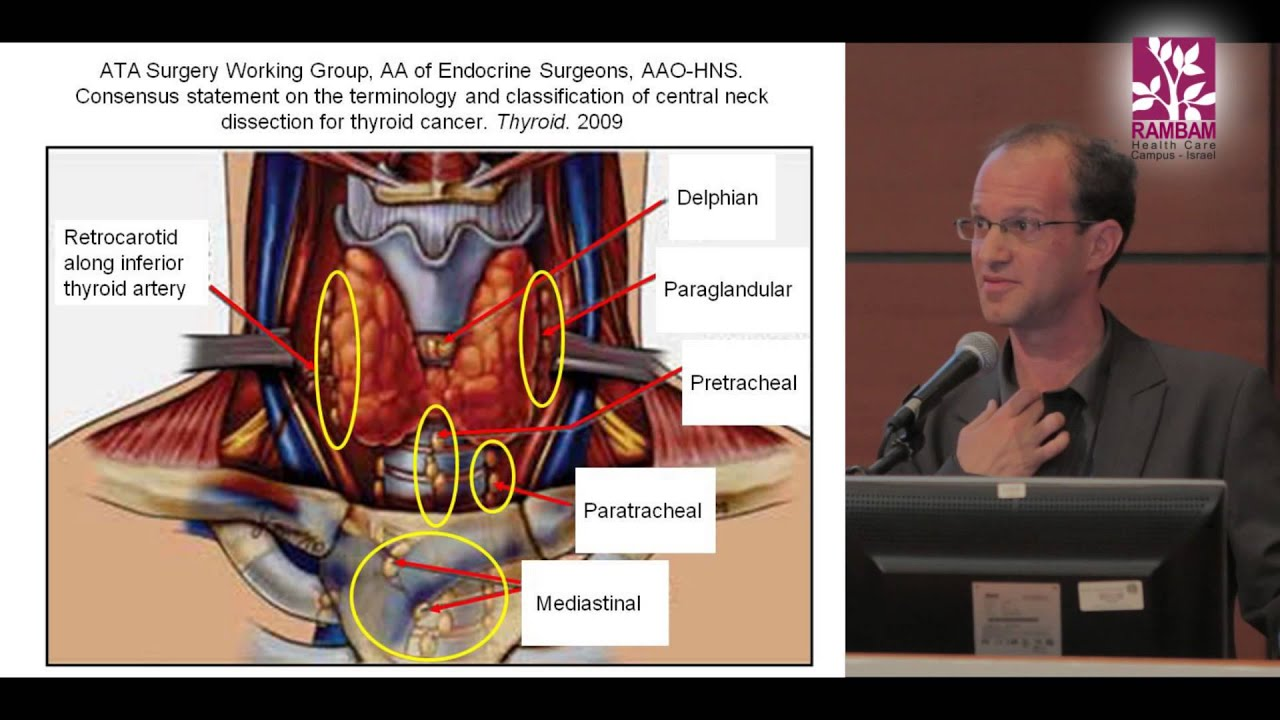 Surgical Treatment For Papillary Thyroid Cancer Contra Central