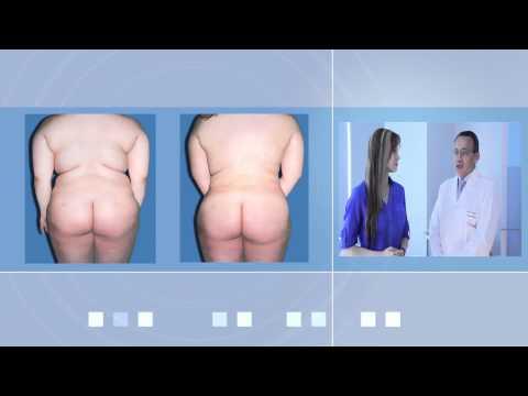 Liposuccion Laser segura con financiacion por cirujano certificado de Bogotá para Hombres y Mujeres