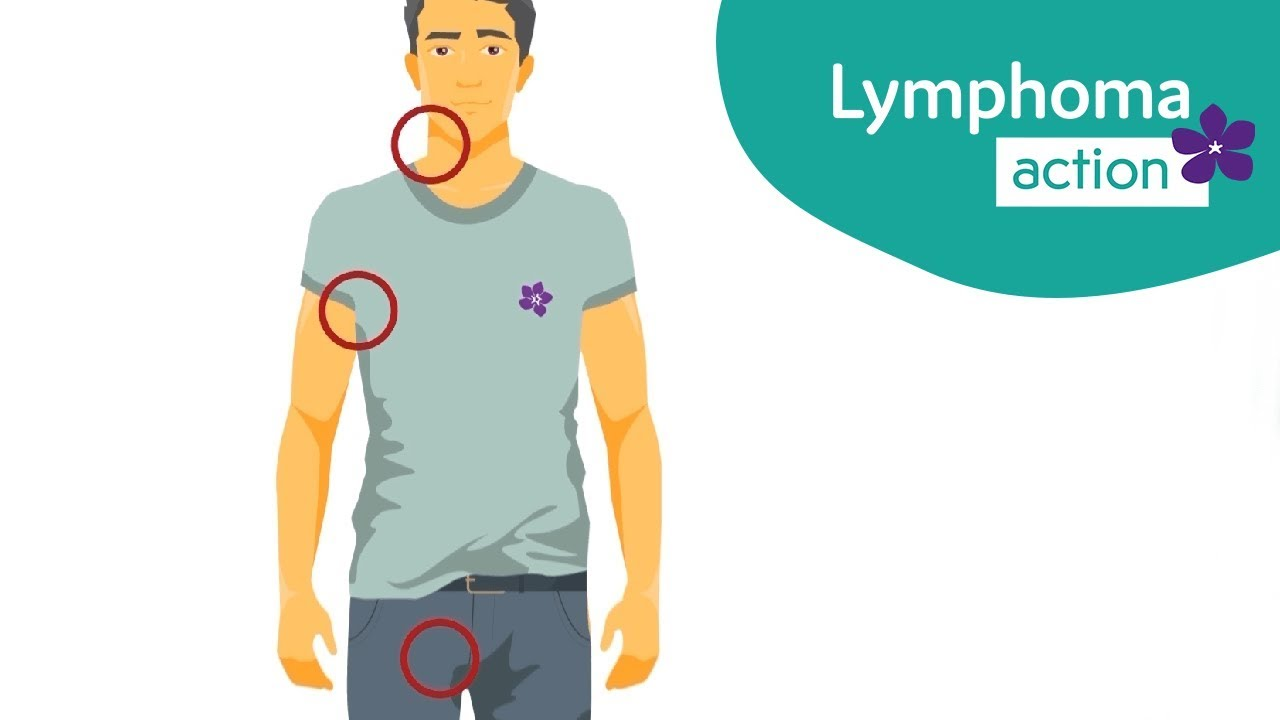 Lymphoma Action | Symptoms of lymphoma