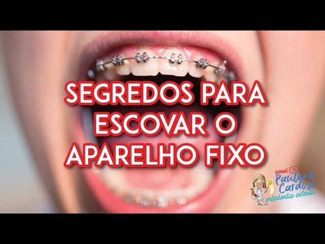 Dra Paulene Cardoso - Segredos para escovar o aparelho fixo