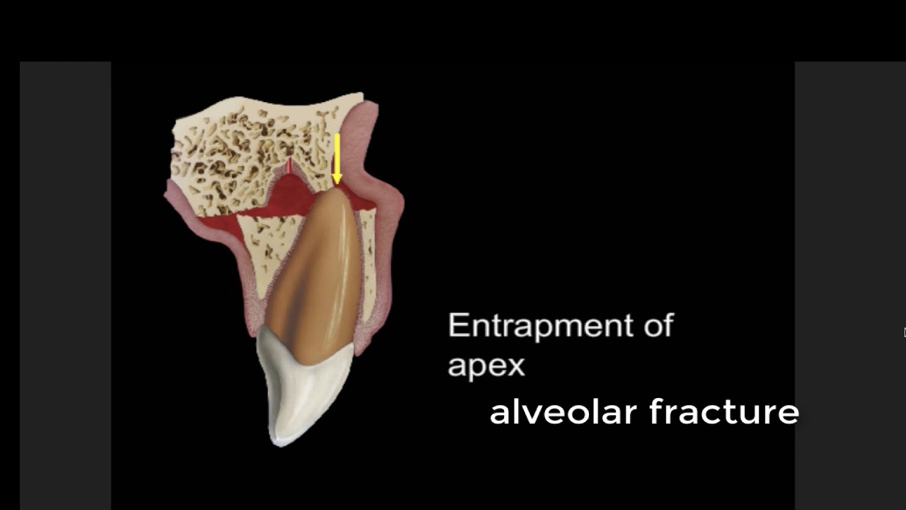 alveolar fracture - YouTube