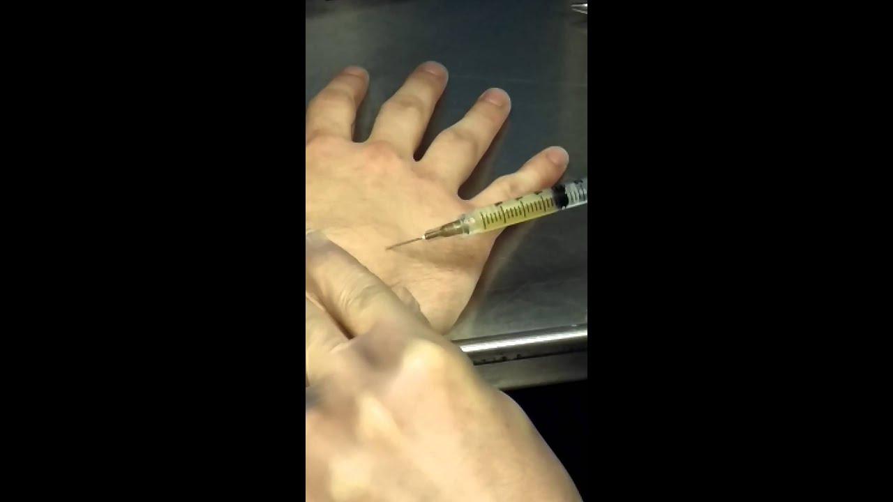 Ganglion cyst aspiration - YouTube
