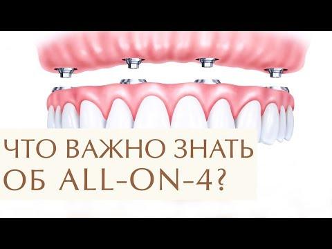 В каких случаях стоит выбрать систему имплантации зубов все на 4. Имплантация зубов все на 4. 12+