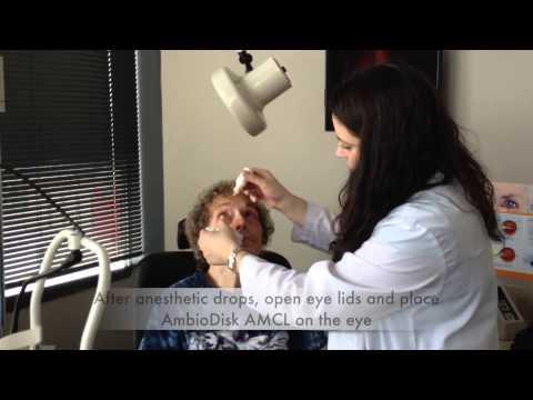 ambiodisk-amniotic-membrane-contact-lens-patient-#7