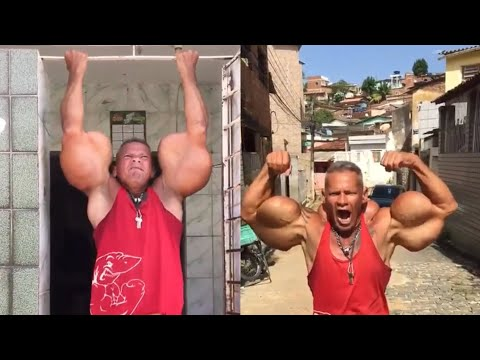 Brazilian 'Hulk' Proves His Strength With Fake Arms
