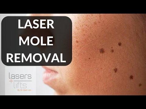LASER MOLE REMOVAL - YouTube