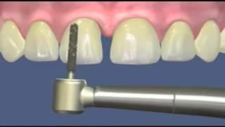 видео Художественная реставрация зубов