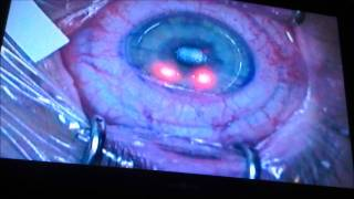 My LASIK vision correction. Actual surgery of right eye!