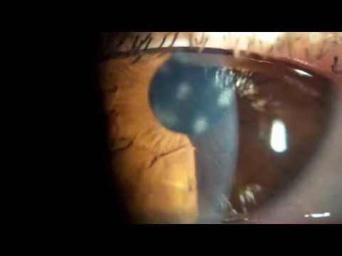 Осложнения от ношения контактных линз Контактные линзы