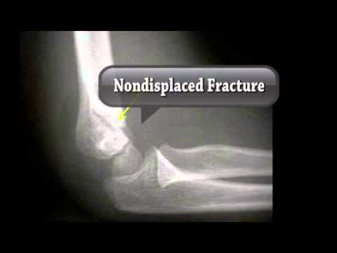 Bone Fractures - Types and Treatment
