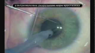 Удаление катаракты. Операция по удалению катаракты(Удаление катаракты. Хирург: Миронов А.В. Источник: http://www.ophthalm.com/content/Hirurgiya_katarakty.php. Бесшовное удаление катара..., 2012-02-29T15:45:15.000Z)