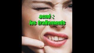 récapitulatif des traitements contre l'acné
